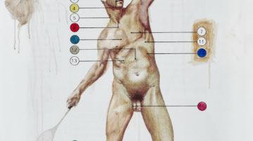 massive nerve corpus